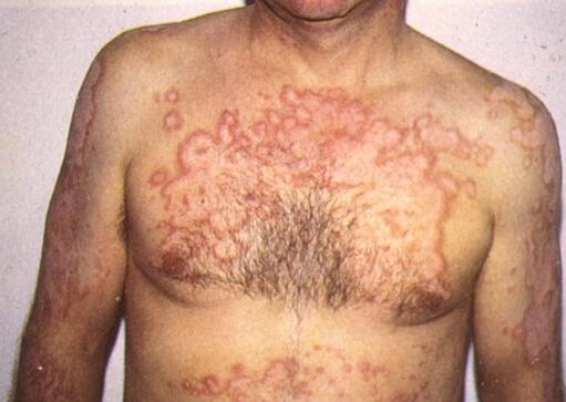признаки поражения организма паразитами
